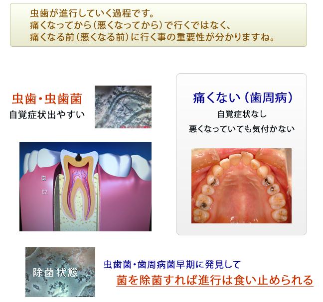 産後 虫歯